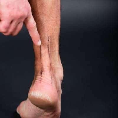 prevenir la lesión